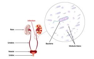schema-infection-urinaire