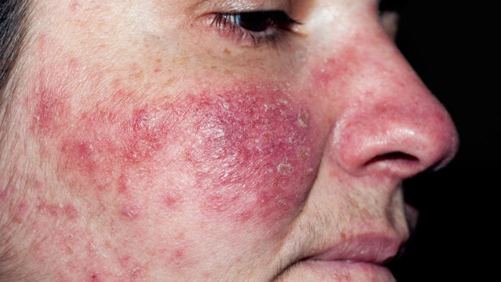 acarien-pore-peau-4