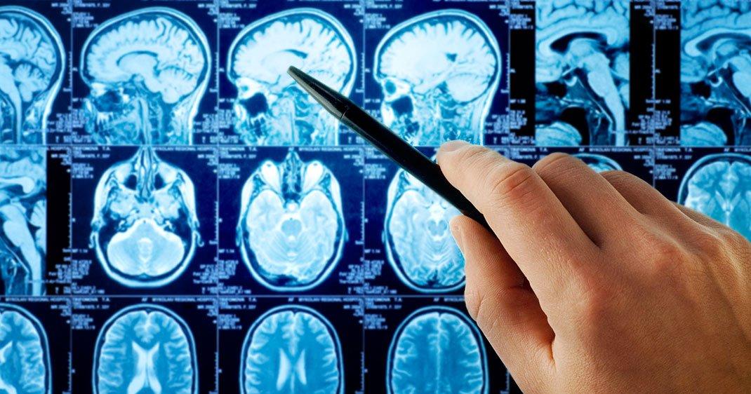 une-scanner-cerveau