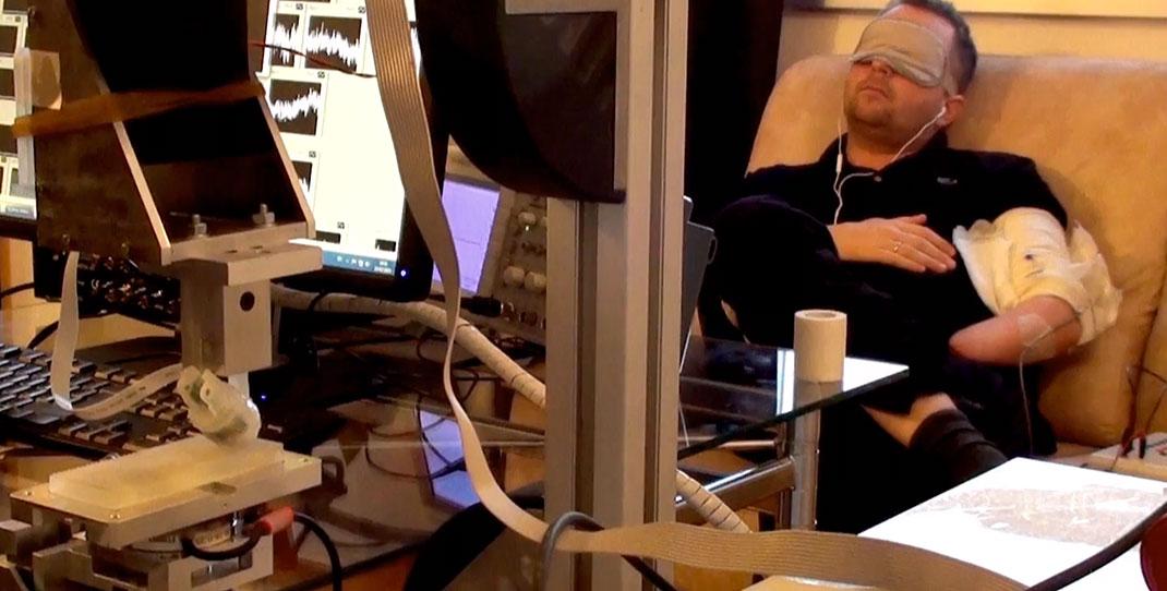 Doigt bionique