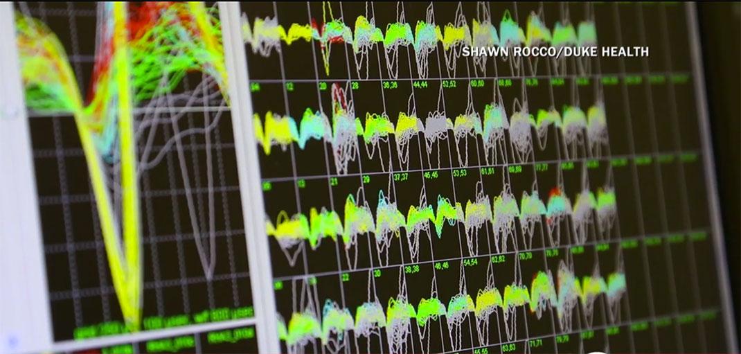 visu-interface-cerveau-4