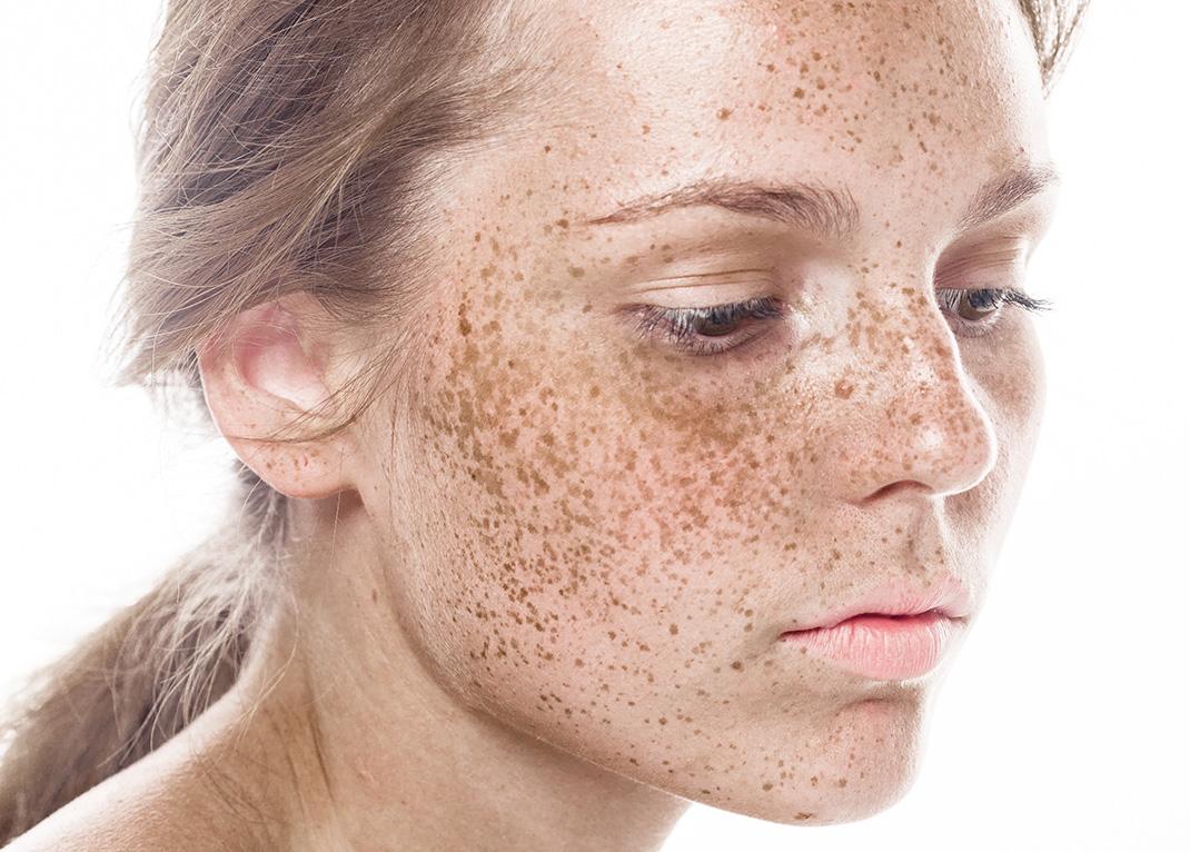 La violation de la pigmentation de la peau leurs aspects