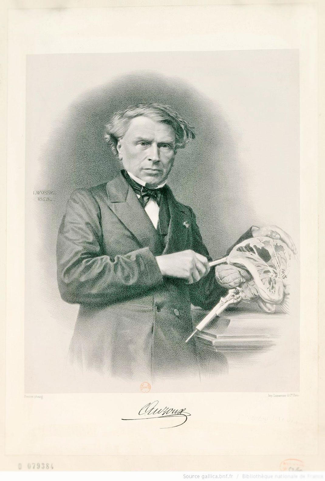 Portraits de Louis Thomas Jérôme Auzoux (XIXe s.) Coll. de la Bibliothèque nationale de France, département estampes et photographie