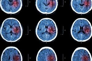 Cerveau d'un patient via Shutterstock