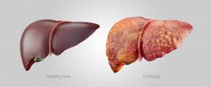 La comparaison d'un foie sain à un foie avec une cirrhose via Shutterstock