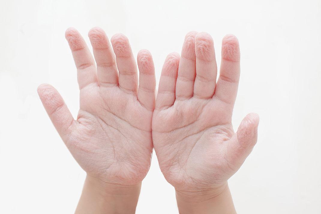 Des mains fripées par l'eau via Shutterstock