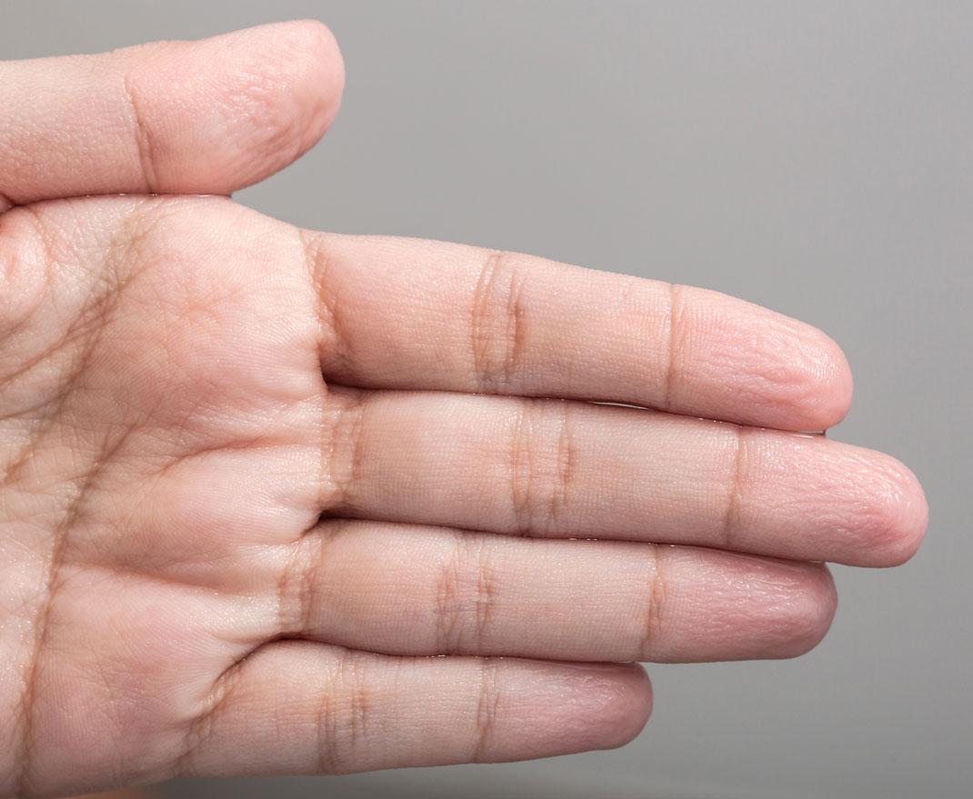 La peau de doigts fripée par l'eau via Shutterstock