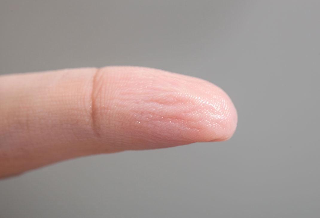 La peau d'un doigt fripée par l'eau via Shutterstock