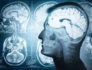 Une radiographie d'un cerveau humain via Shutterstock