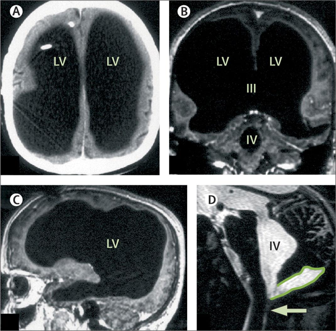 Le cerveau du patient