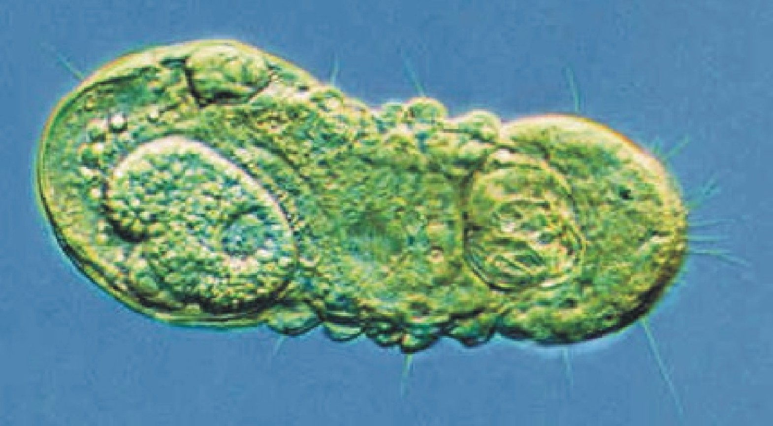 Micrognathozoa