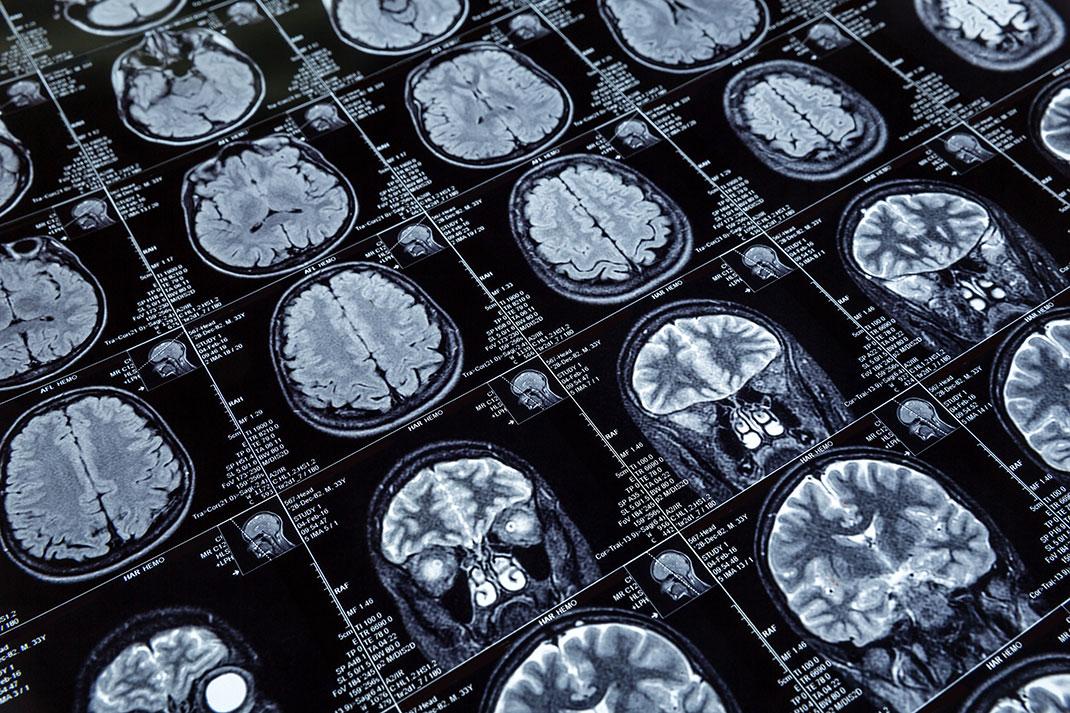 Des images de cerveaux via Shutterstock