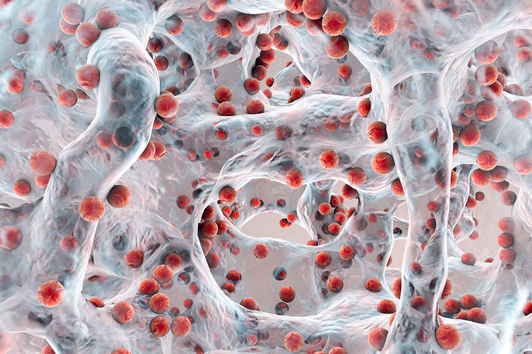 Biofilm de bactéries résistantes aux antibiotiques via Shutterstock