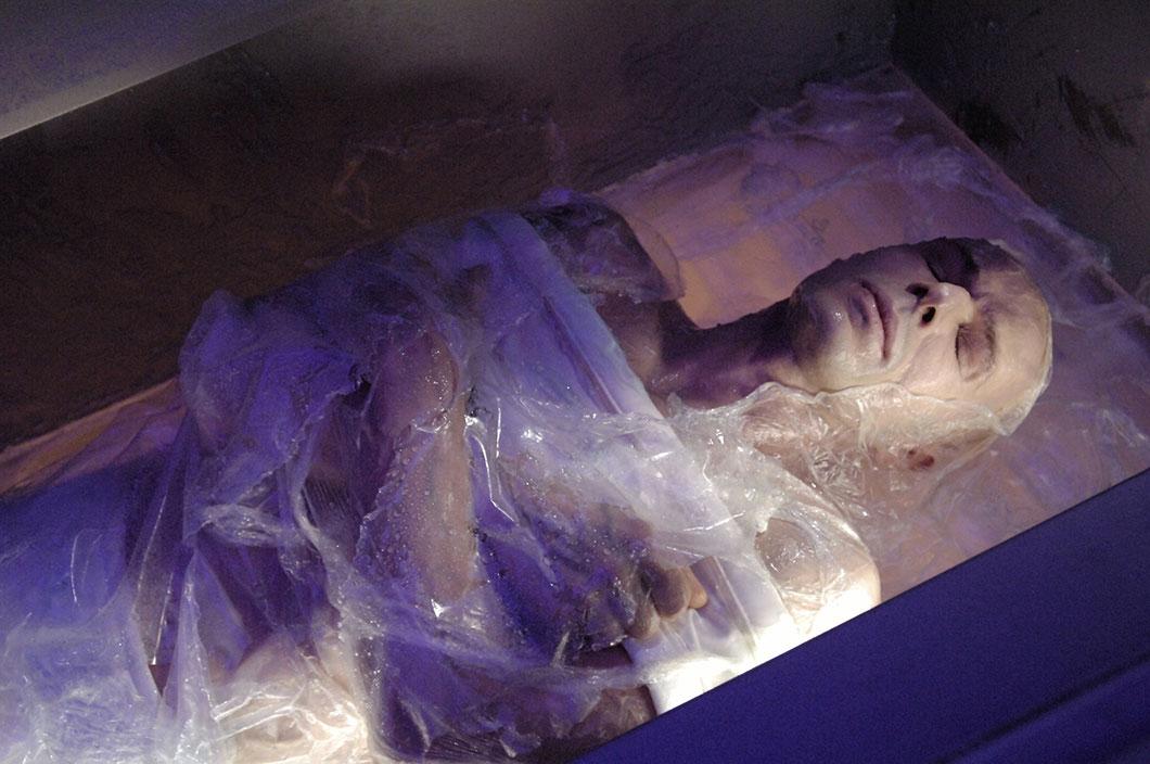 cryogenisation