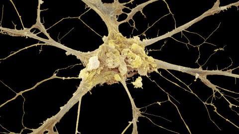 axone-humain