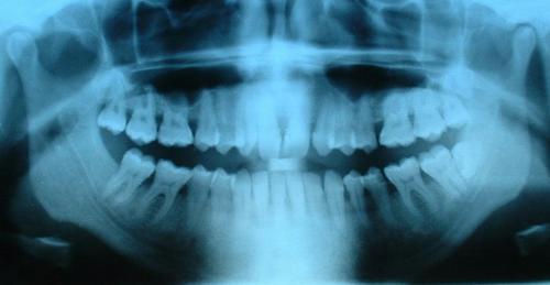 radio-dentaire